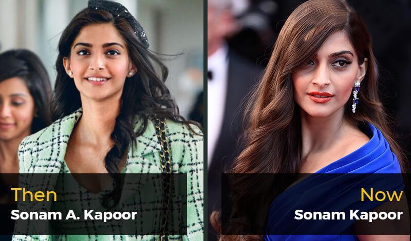 Then Sonam A. Kapoor- Now Sonam Kapoor
